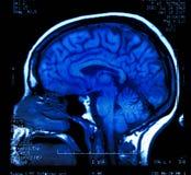 Cervello MRI Fotografie Stock Libere da Diritti
