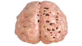 Cervello nella malattia di cervello severa, demenza, Alzheimer, corea Huntington - rappresentazione 3D Fotografia Stock Libera da Diritti