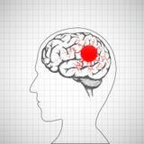 Cervello umano dentro la testa Malattia di emicrania illustrazione vettoriale