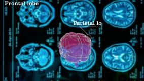 Cervello umano la struttura del illustrazione di stock