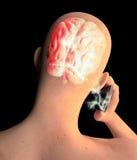 Cervello, uomo con il telefono cellulare, Brain Problems, causa del tumore, malattie degeneranti, ` s, fronte di Parkinson di pro Immagine Stock