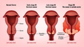 Cervical cancer image. Cervical cancer development image. Detailed vector illustration with uterus and cervix carcinoma stages. Biology, anatomy, medicine Royalty Free Stock Image