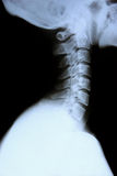 Cervical spine. X-ay of the cervical spine en lateral view royalty free stock photography