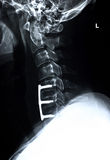 Cervical spine/side Royalty Free Stock Photos