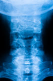 Cervical Spine X-ray Stock Photo