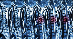 Cervical spondylosis with disc herniation ( MRI of cervical spine : show cervical spondylosis with disc herniation compress spinal royalty free stock photography