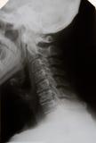 cervical st för osteochondrosis iii Arkivfoton