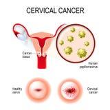 Cervikal cancer livmoder, hals och närbild av den mänskliga papilen stock illustrationer