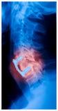 Cervikal inbindningskirurgiröntgenstråle Arkivbild