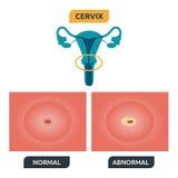 cervix Obrazy Royalty Free