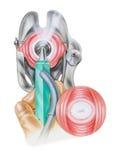 Cerviz - Cryosurgery de lesiones cervicales Foto de archivo