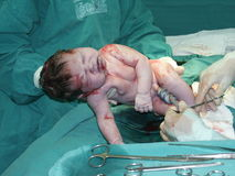 Cesarean Operation 3