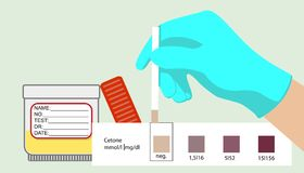 Cetonas expressas médicas do teste do teste da acetona ilustração stock