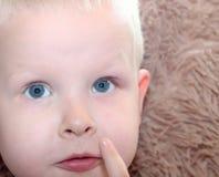 Cevada, hordeolum em uma criança Malote purulento no olho do menino fotografia de stock