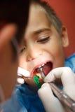 Chłopiec przy dentystą Fotografia Stock