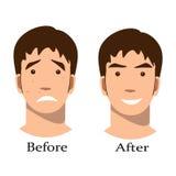 Chłopiec trądzika traktowanie before and after royalty ilustracja