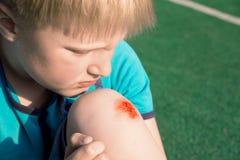 Chłopiec z zeskrobanym kolanem fotografia stock