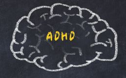 Chalk drawing of human brain with inscription adhd.  stock photo