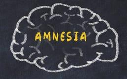 Chalk drawing of human brain with inscription amnesia.  stock photos