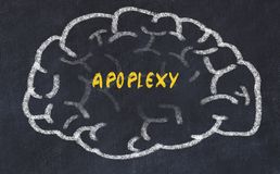 Chalk drawing of human brain with inscription apoplexy.  stock images