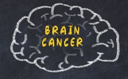 Chalk drawing of human brain with inscription brain cancer.  stock photo