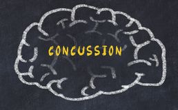 Chalk drawing of human brain with inscription concussion.  royalty free stock image