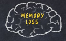 Chalk drawing of human brain with inscription memory loss.  royalty free stock photos