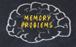 Chalk drawing of human brain with inscription memory problems.  royalty free stock photos