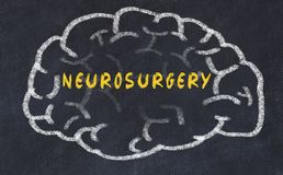 Chalk drawing of human brain with inscription neurosurgery.  royalty free stock images