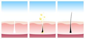 Champú que ayuda a crecimiento del pelo, ilustración del vector