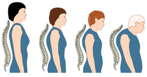 Change of posture with age. Development of a stooped stance with age, showing increasing curvature of the spine. Created in Adobe Illustrator.  EPS 10 Royalty Free Stock Photography