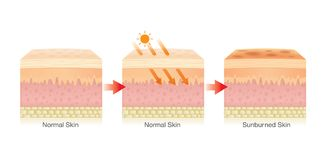 Changing of human skin layer damaged from sunlight. Step of Changing of human skin layer damaged from sunlight. Illustration about Health care Stock Photo