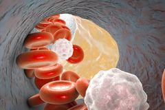 Chapa do Atheroma dentro da artéria ilustração do vetor