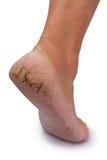 Chapped heel Stock Photos