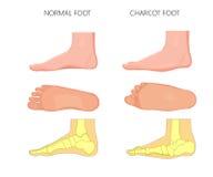 Charcot foot Royalty Free Stock Image