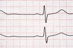 Chart background. Analytic concept. Cardio diagnosis ekg Stock Image