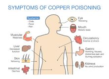 Chart of the Main Symptoms of Copper Poisoning. Illustration about medical diagram Stock Images