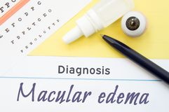 Chart for testing visual acuity, eye drops and anatomical model lies next to inscription Diagnosis Macular Edema. Concept for diag Royalty Free Stock Photo