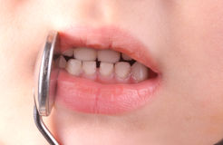 Checking a child's teeth. Checking a child's teeth Royalty Free Stock Image