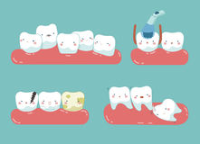 Check up decayed tooth , Wisdom tooth of dental set Stock Photo