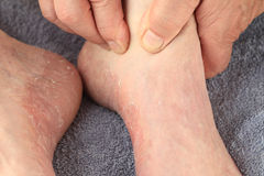 Checking athletes foot symptoms of dry skin Stock Photos