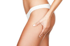 Checking cellulite form hips Stock Photo