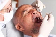 checkup usta zdjęcie stock