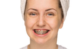 Cheerful girl with braces isolated Stock Photo