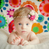 Cheerful little baby girl with Downs Syndrome. Cheerful little  baby girl with Downs Syndrome Stock Image