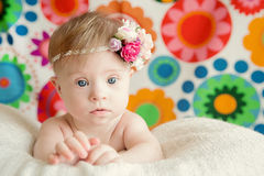 Cheerful little baby girl with Downs Syndrome. Cheerful little  baby girl with Downs Syndrome Royalty Free Stock Photo