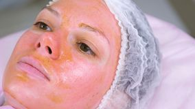Chemical peeling o the woman`s face. Cleaning the face skin and lightening freckles skin. Close-up face. Chemical peeling o the woman`s face. Cleaning the face stock video footage