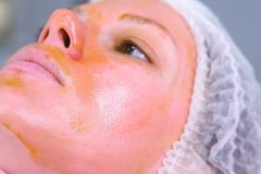 Chemical peeling o the woman`s face. Cleaning the face skin and lightening freckles skin. Close-up face. Side view. Chemical peeling o the woman`s face royalty free stock images
