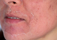 Chemical peeling. Side view of caucasian woman face after chemical peeling. Focus on mustache stock photo