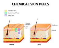 Chemical peels Royalty Free Stock Photo